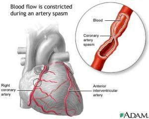 coronary-artery-spasm
